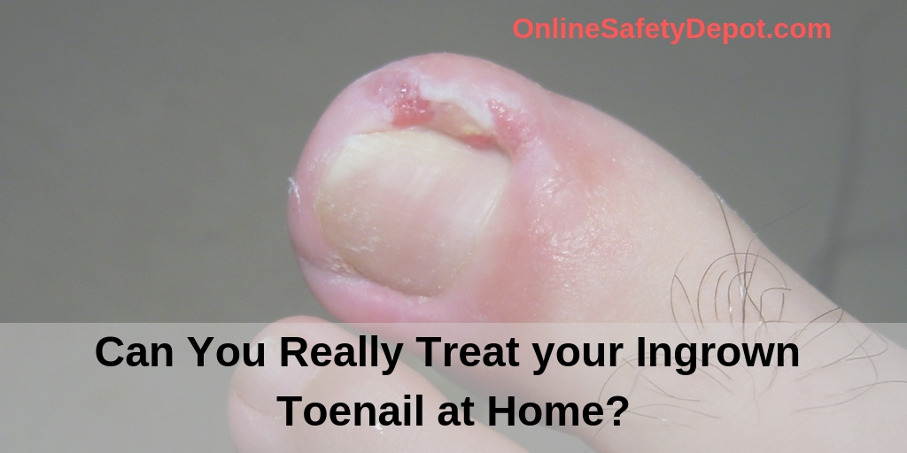 Can You Really Treat Your Ingrown Toenail At Home